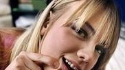 Wat kun je doen om acne jeugdpuistjes te verminderen